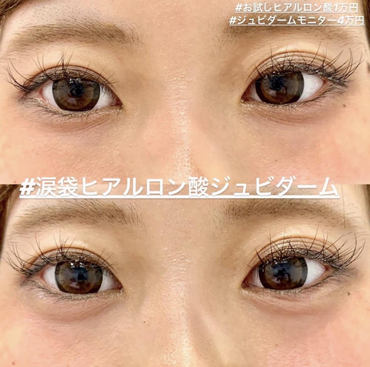 片目 涙 痛い 腫れ 袋
