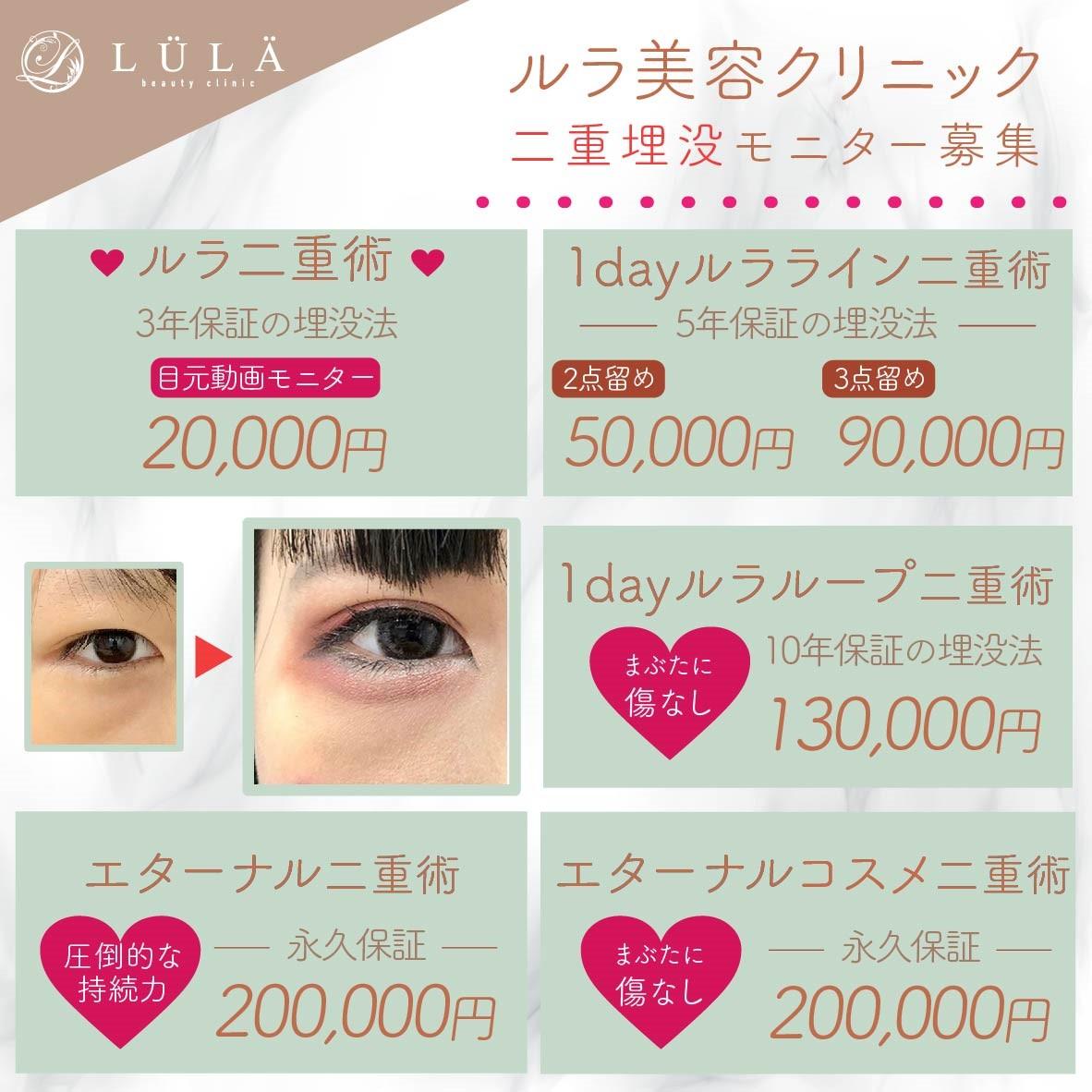 二重・目元|LULA(ルラ)美容クリニック