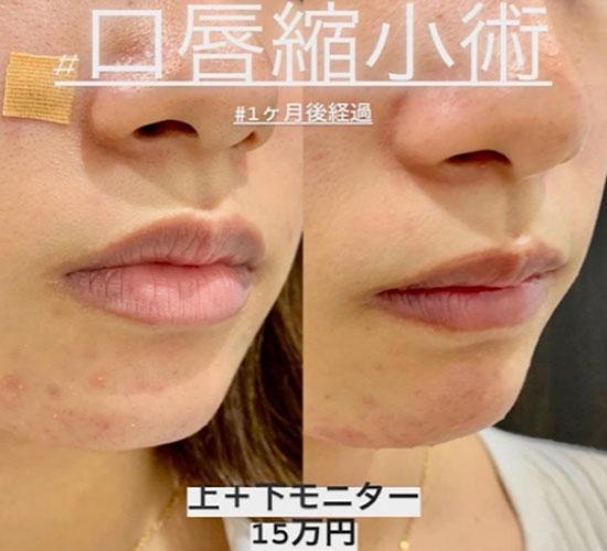 唇 腫れ マスク